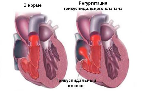 su pulsine hipertenzija)