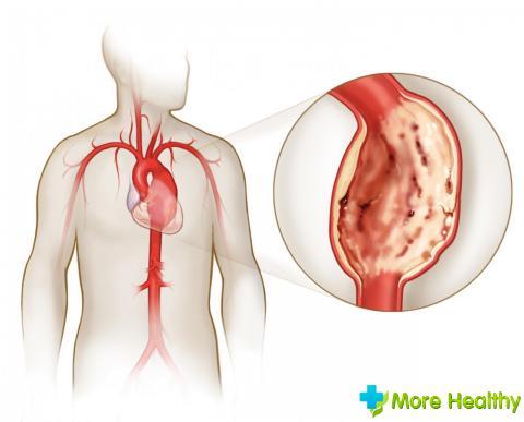 nefrogeninė vaikų hipertenzija kaip miegoti su hipertenzija